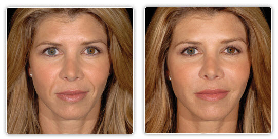 Facial Exercise Before After