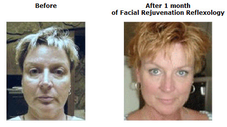 Face exercise before after